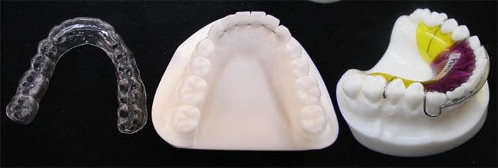 Types of orthodontic Retainers