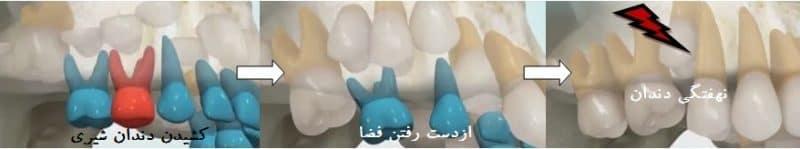 نهفتگی به علت کشیدن دندان شیری