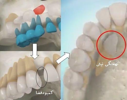 علت نهفته شدن دندان نیش