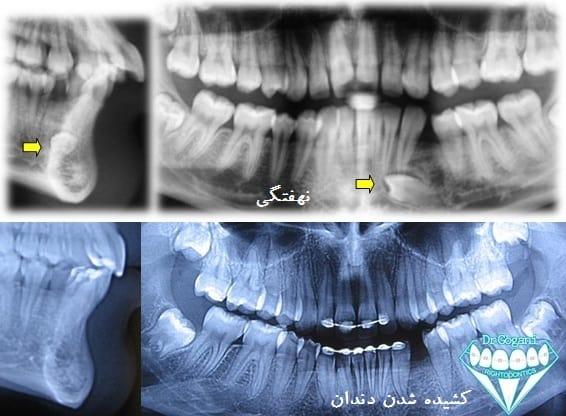 دندان نهفته محکوم به کشیده شدن طی ارتودنسی