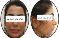 درمان بی نظمی و برجستگی دندان ها در بزرگسال