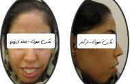 ارتودنسی بدون جراحی فک در فردی با صورت بلند و دندان های برجسته
