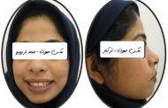 درمان بی نظمی، فاصله و برجستگی دندان ها