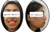 درمان بی نظمی و برجستگی دندان ها و لب ها