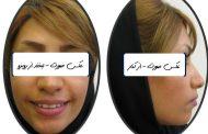 درمان برجستگی دندان ها و لب ها