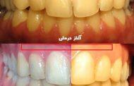 آیا رنگ دندان ها بعد از ارتودنسی زرد می شود؟
