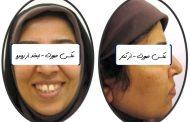 درمان برجستگی و فاصله دندان ها در بزرگسالی