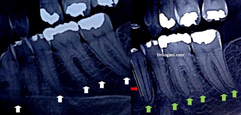 عوارض ارتودنسی روی ریشه ها