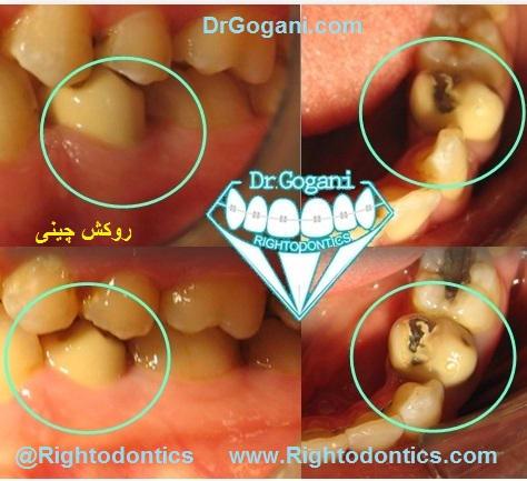 روکش دندان طی ارتودنسی