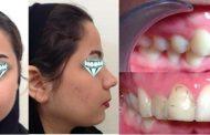 اصلاح نامرتبی دندان ها: یک بام و چند هوا! - ارتودنسی فوری!