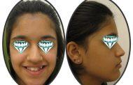 درمان بی نظمی و برجستگی دندان ها
