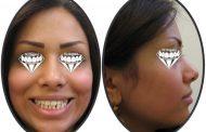 درمان برجستگی و فاصله دندان ها در جوانی