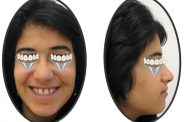 درمان کمبود دندان های ثنایا و فاصله بین دندان ها