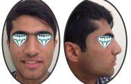 درمان کمبود فضا برای دندان نیش و Cl II (جلو زدن دندان های بالا) بدون کشیدن