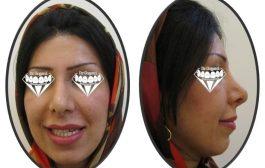 درمان برجستگی و بینظمی دندان ها و برجستگی لب پایین