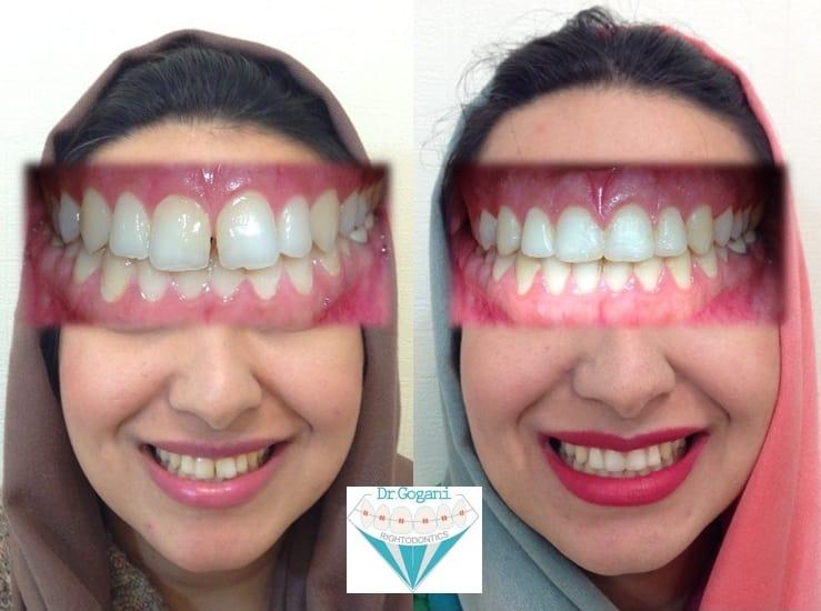 بستن فضای بین دندان ها با ارتودنسی