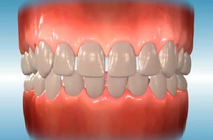spacing فضای زیاد بین دندان ها