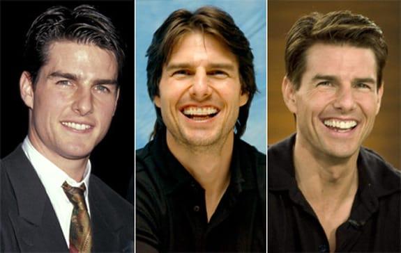 تام کروز قبل و بعد از ارتودنسی
