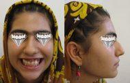 درمان نهفتگی چند دندان و اصلاح طرح لبخند