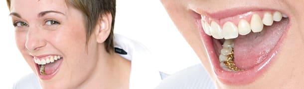 ارتودنسی پشت دندانی زبانی