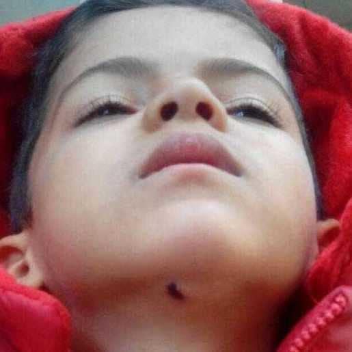 ماجرای بخیه کودک در خمینی شهر اصفهان