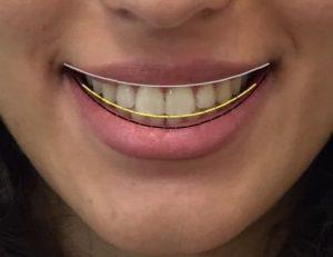 لبخند زیبا - لبخند ایده آل