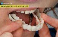 snap-on-smile یا کاور دندان چیست؟