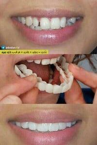 تبلیغ نادرست کاور دندان در بدندید