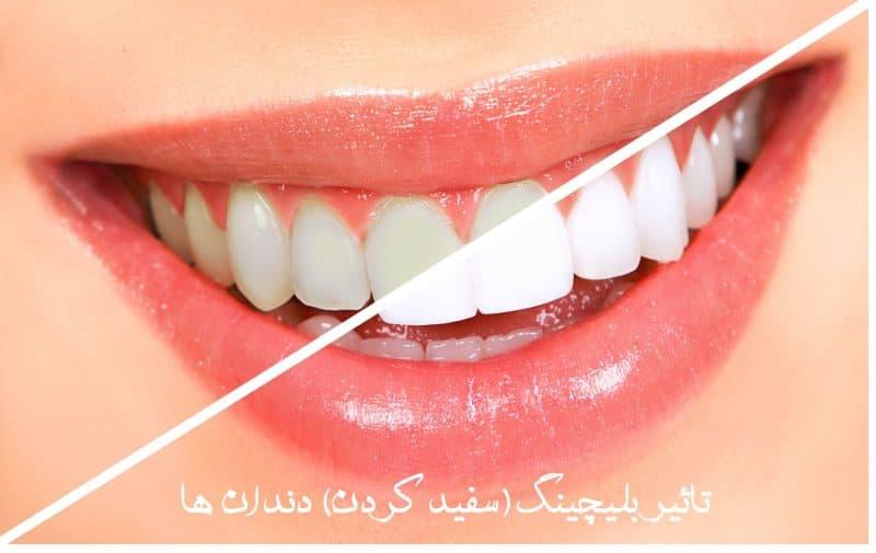 بلیچینگ یا سفید کردن دندان bleeching of teeth