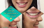 خصوصیات یک لبخند زیبا و ایده آل چیست؟