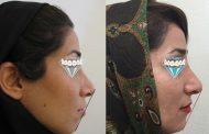 درمان برجستگی دندان ها و لب ها و بستن فضا