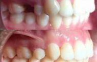 درمان نامرتبی و Cl II یک طرفه با کشیدن یک دندان در ۱۰ ماه