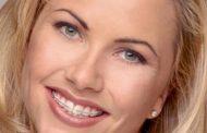 اصلاح نامرتبی دندان ها و روابط نامناسب دندان ها