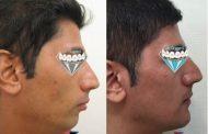 درمان کوچکی فک پایین و غبغب با ارتودنسی + جراحی فک