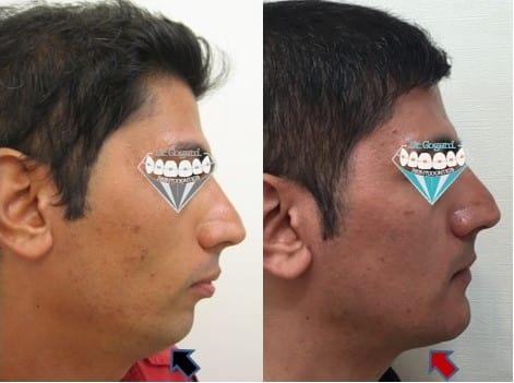 بهترین نمونه جراحی فک و صرت به همراه ارتودنسی در عقب بودن فک پایین