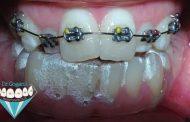 ارتودنسی کوتاه مدت با ترکیب ارتودنسی نامرئی و فلزی