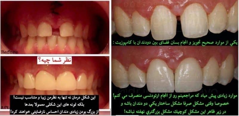 بستن فصای بین دندان ها : موفق و ناموفق