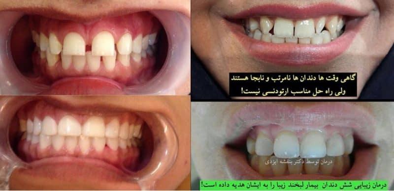 اصلاح نامرتبی و فاصله دندان ها بدون ارتودنسی