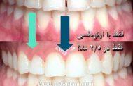 دندان های نامرتب را با ارتودنسی صاف کنیم یا بدون ارتودنسی؟