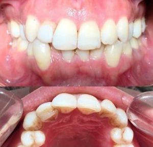 کامپوزیت ونیر (لمینیت دندان) نامناسب