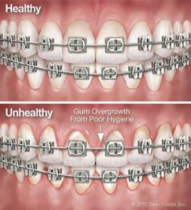 ضعف در بهداشت دهان در ارتودنسی