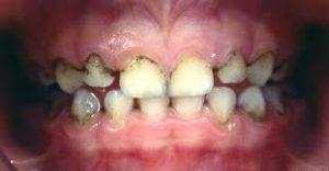 قطره آهن و تغییر رنگ دندان ها