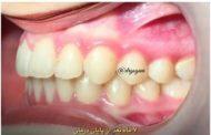 ارتودنسی دومرحله ای برای نجات از جراحی فک و کشیدن دندان