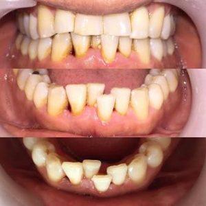 ارتودنسی نکردن دندان ها
