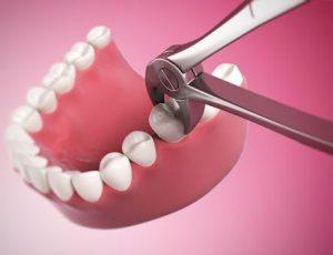 دندان کشیدن با ابزار خصوص