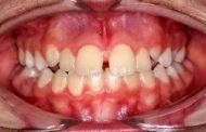ناهماهنگی خط وسط دندان و انواع مختلف آن