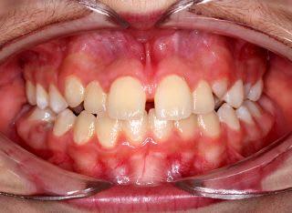 ناهماهنگی خط وسط دندان