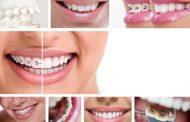 ارتودنسی با براکت های هم رنگ دندان