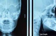 رادیوگرافی سفالومتری چیست و چگونه تهیه می شود؟