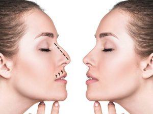جراحی بینی و ارتودنسی